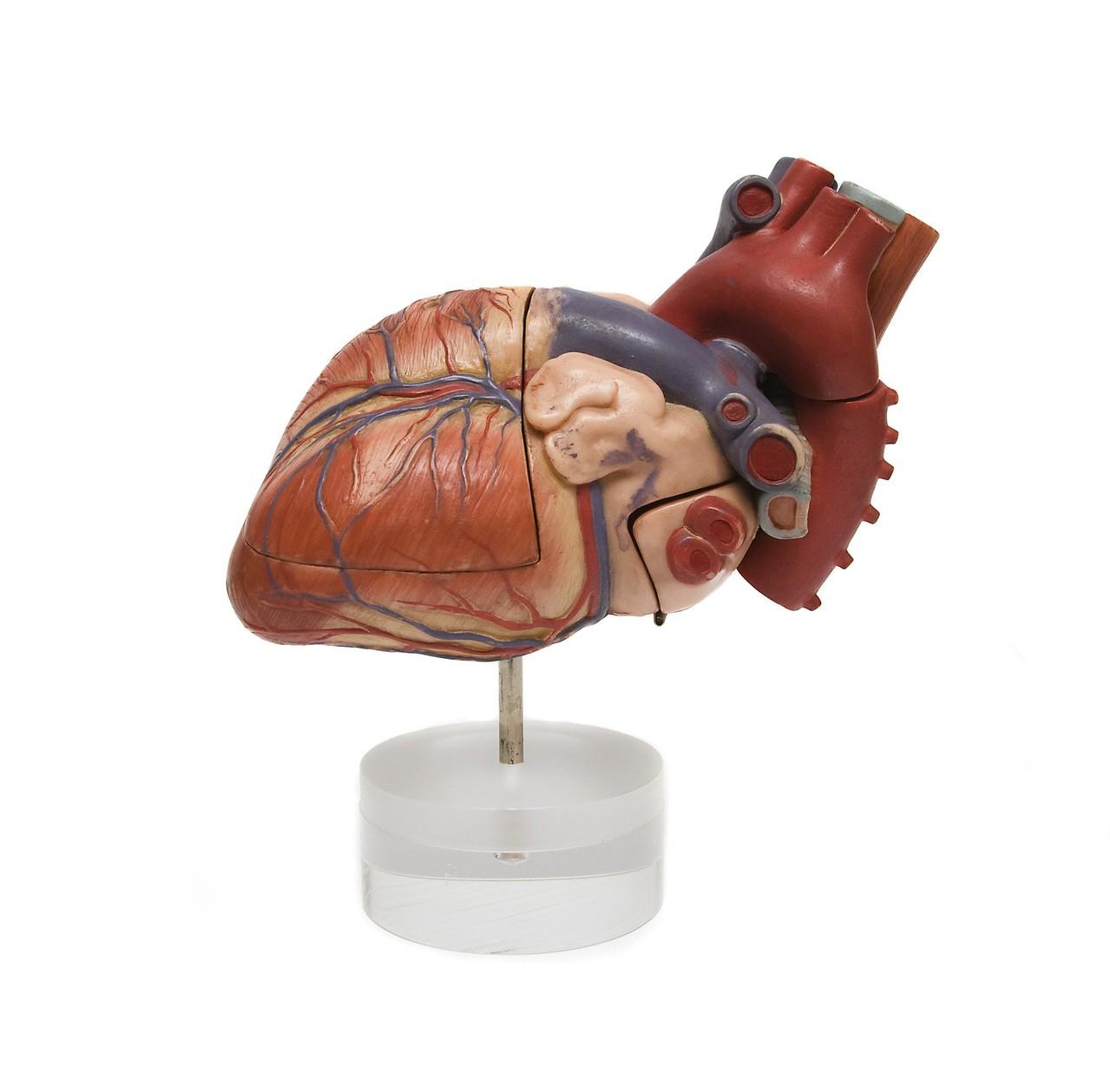 Kardiologia inwazyjna, metody leczenia zawału mięśnia sercowego