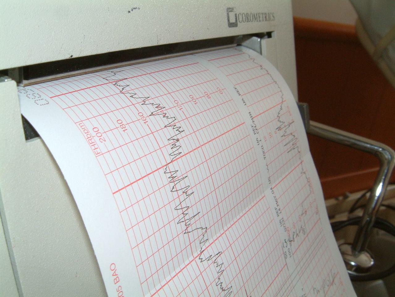 Najczęstsze operacje kardiologiczne