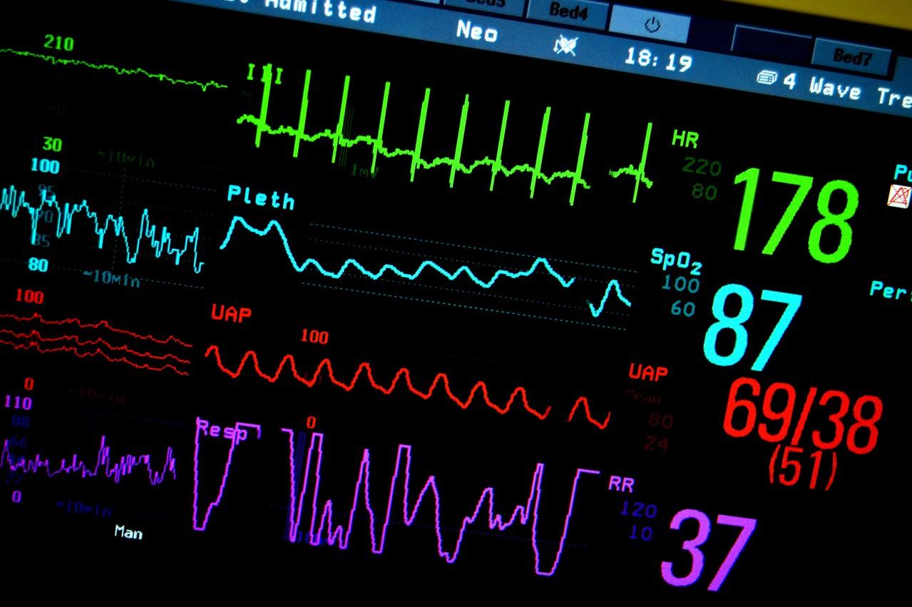Konsultacja kardiochirurgiczna